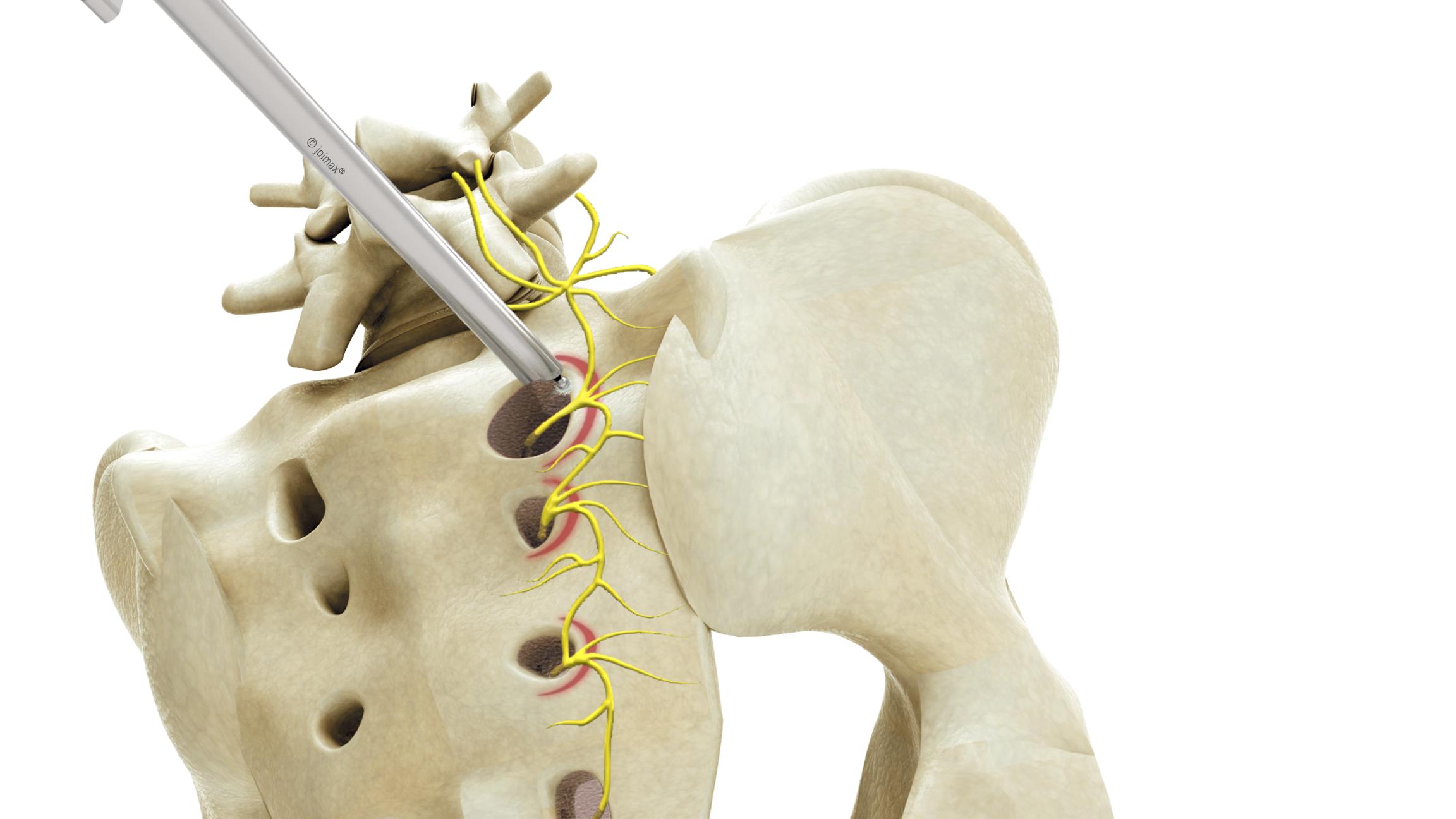 SIG Anatomie